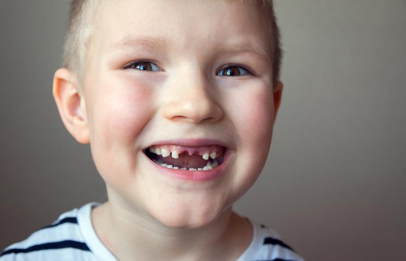 kind zonder tanden