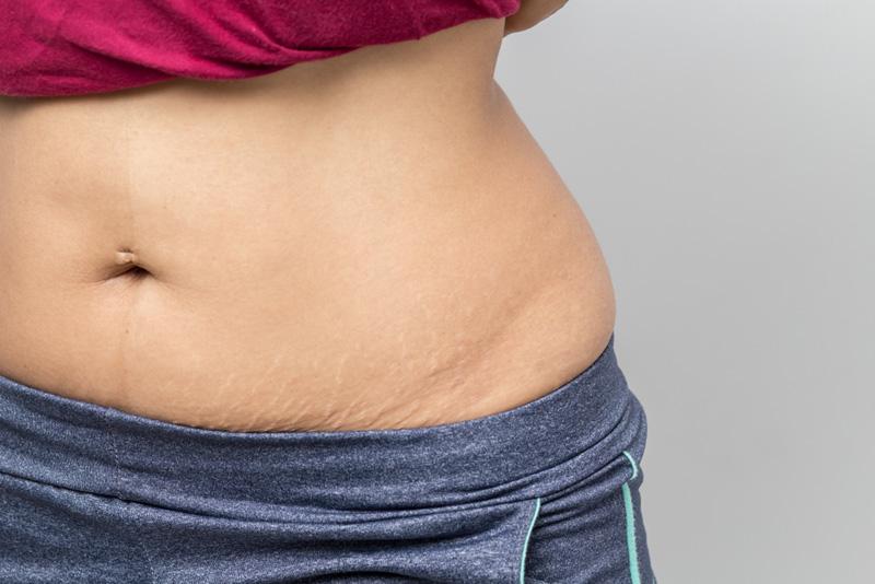veranderen lichaam zwangerschap